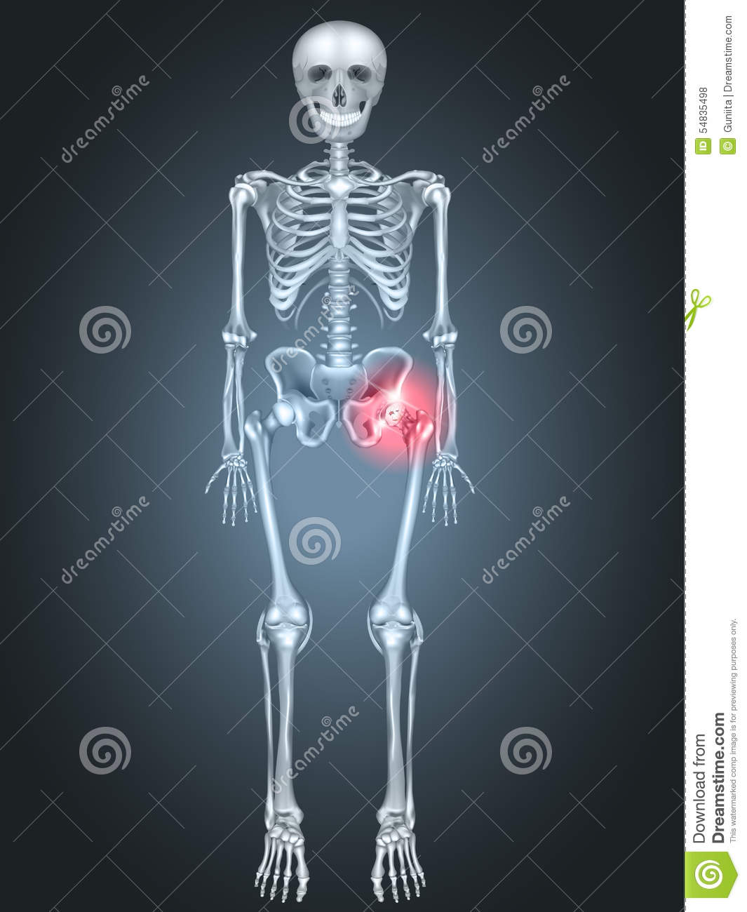 Skeleton with Hip pain stock vector. Illustration of hurt - 54835498