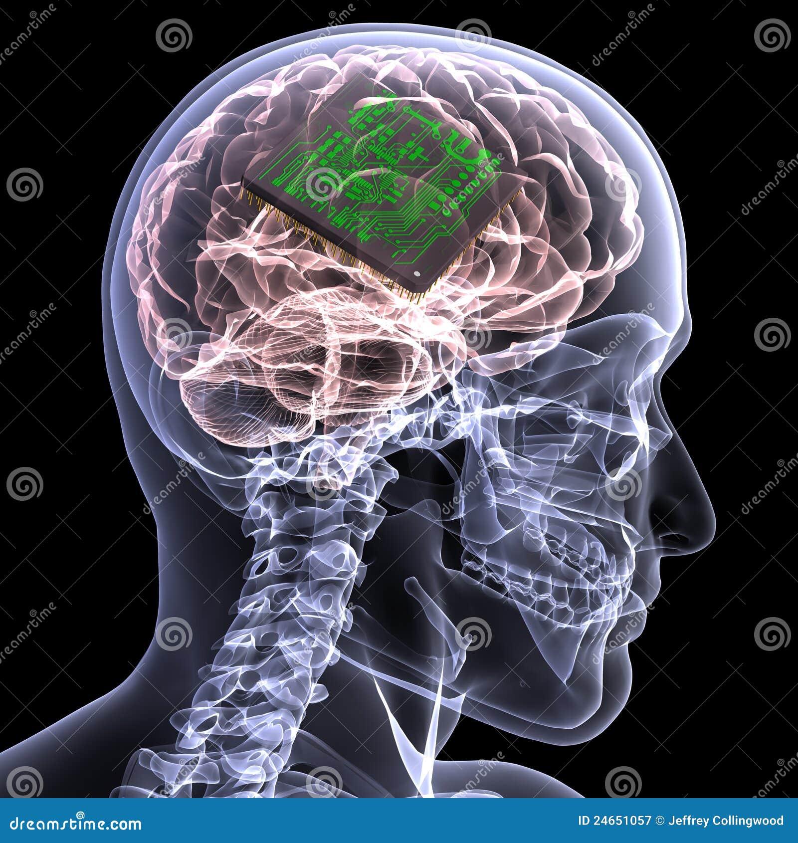 skeleton xray brain with cpu royalty free stock