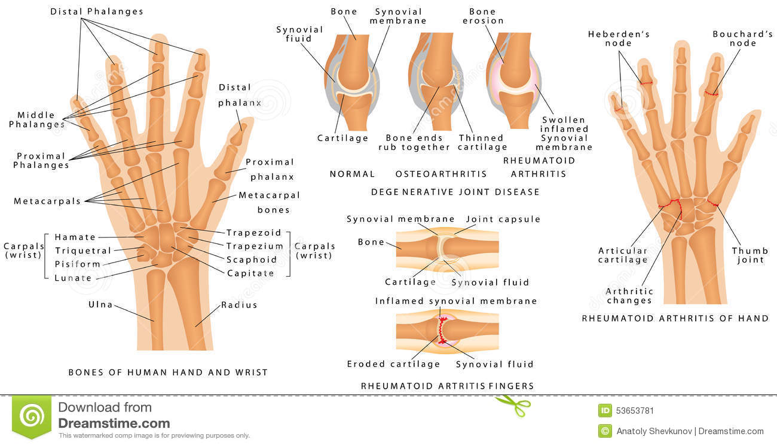 hand anatomi skelett