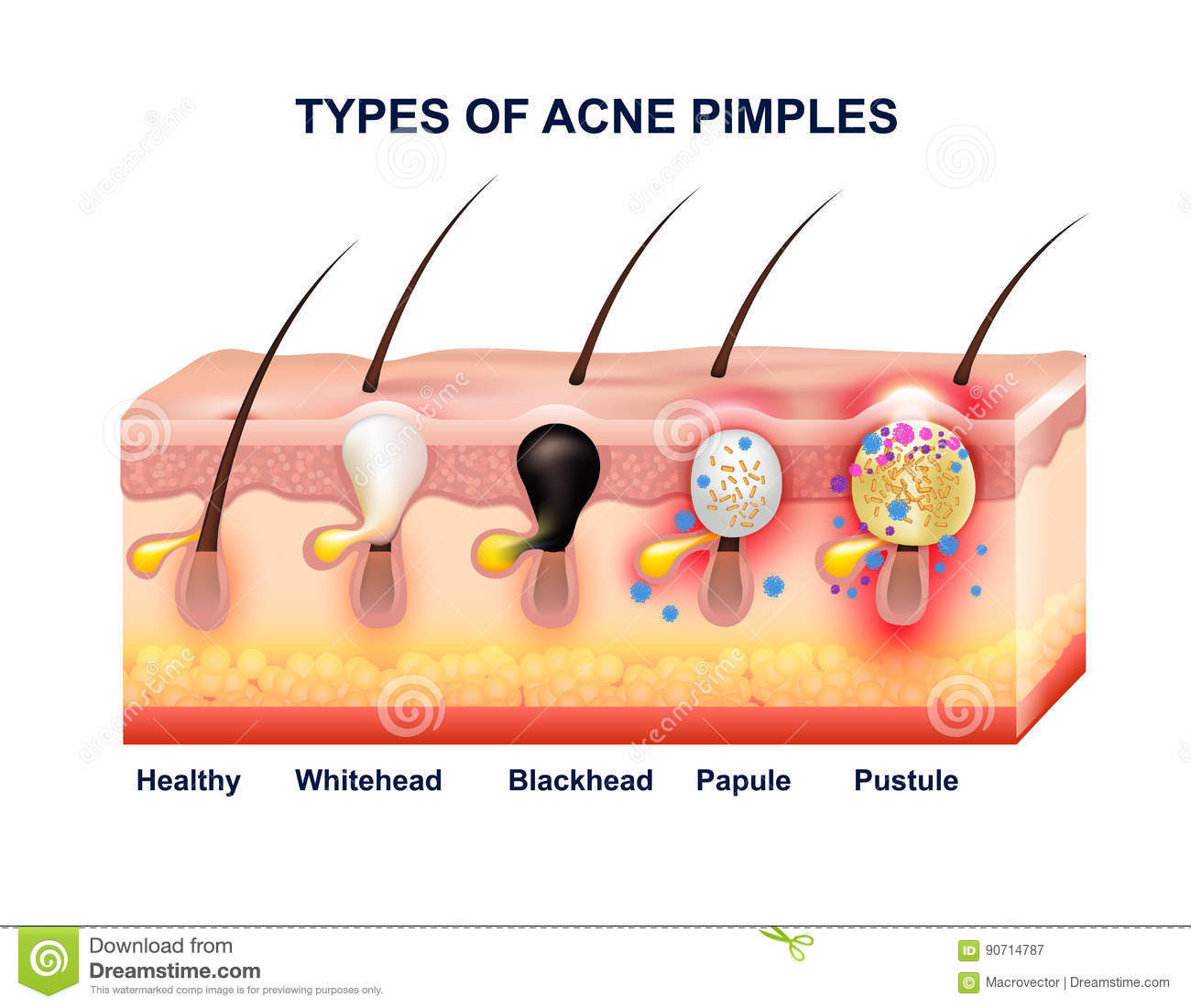 Skin Acne Anatomy Composition Stock Vector Image 90714787