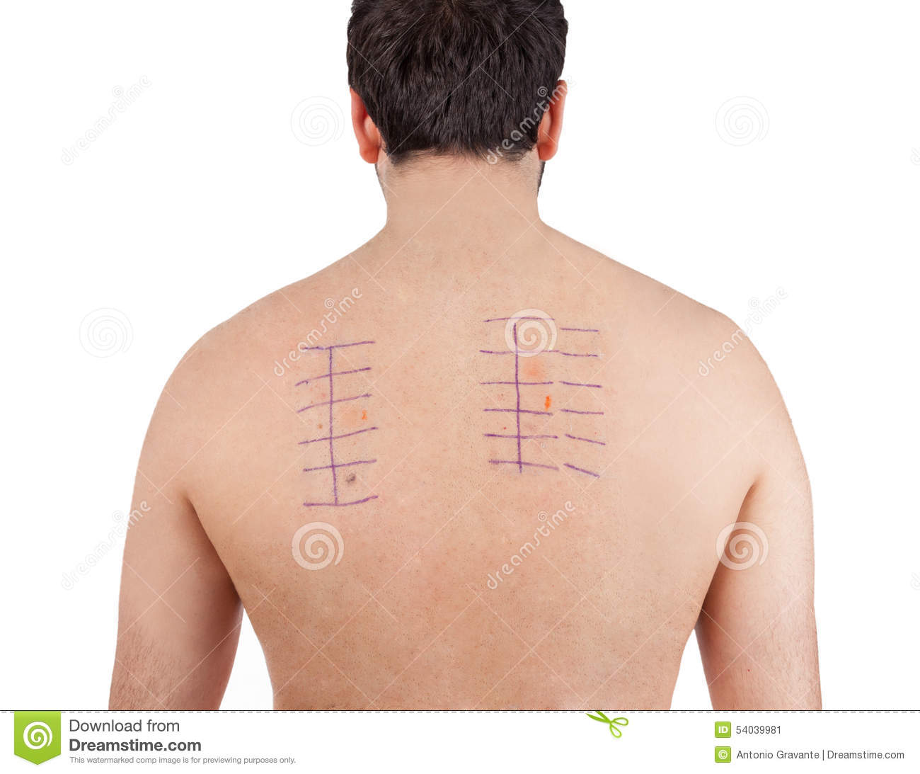 skin allergy patch test on back of male patient on white background