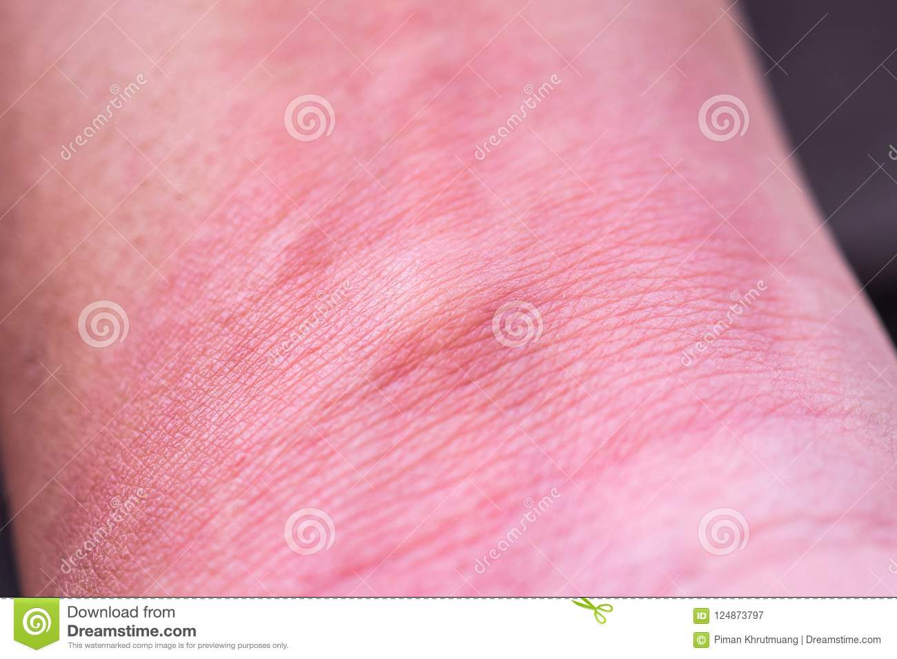 Skin Allergy With Rash After Mosquito Bite Stock Image Image Of