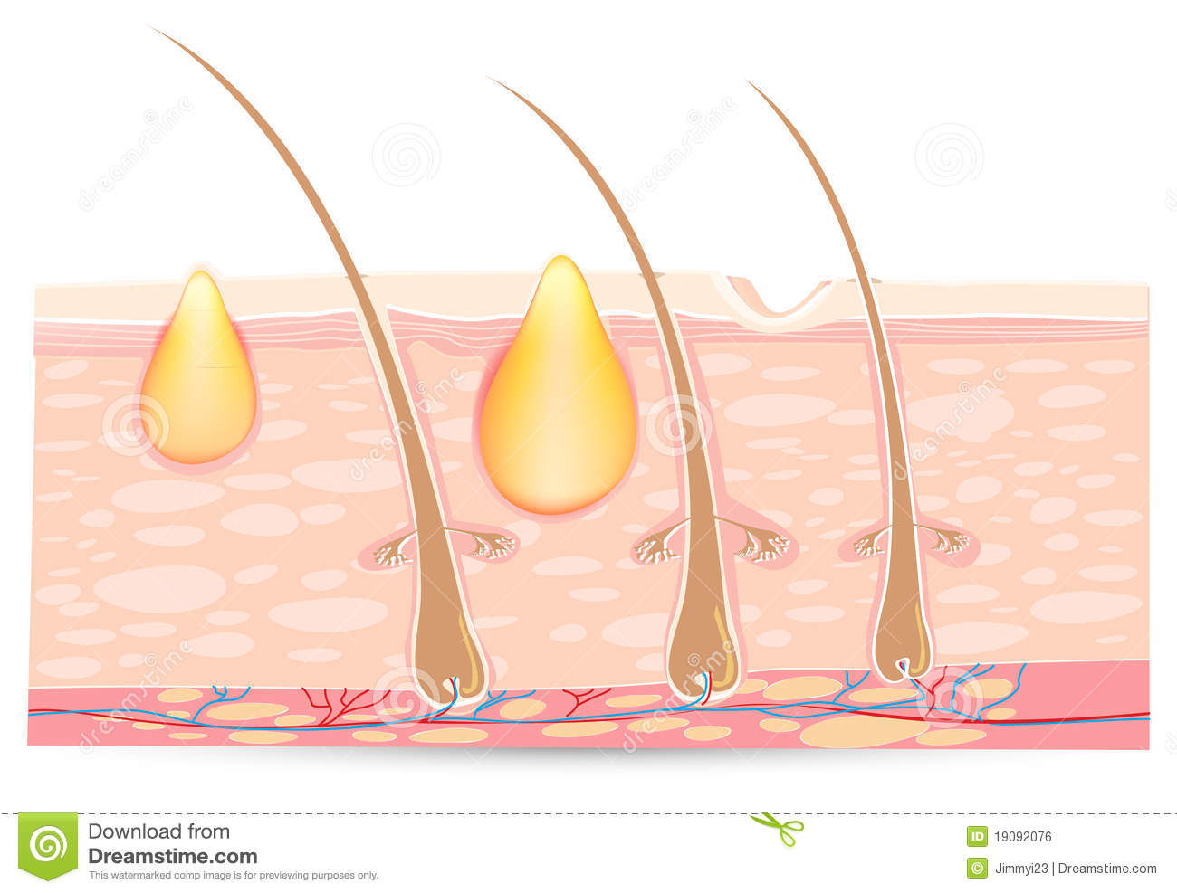 Skin anatomy with acne stock vector. Illustration of follicle - 19092076