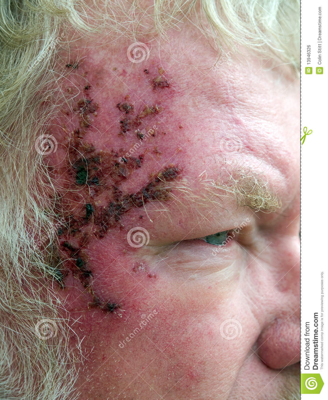 effects of skin cancer Skin cancer is by far the most common type of cancer if you have skin cancer, it is important to know which type you have because it affects your treatment options and your outlook.