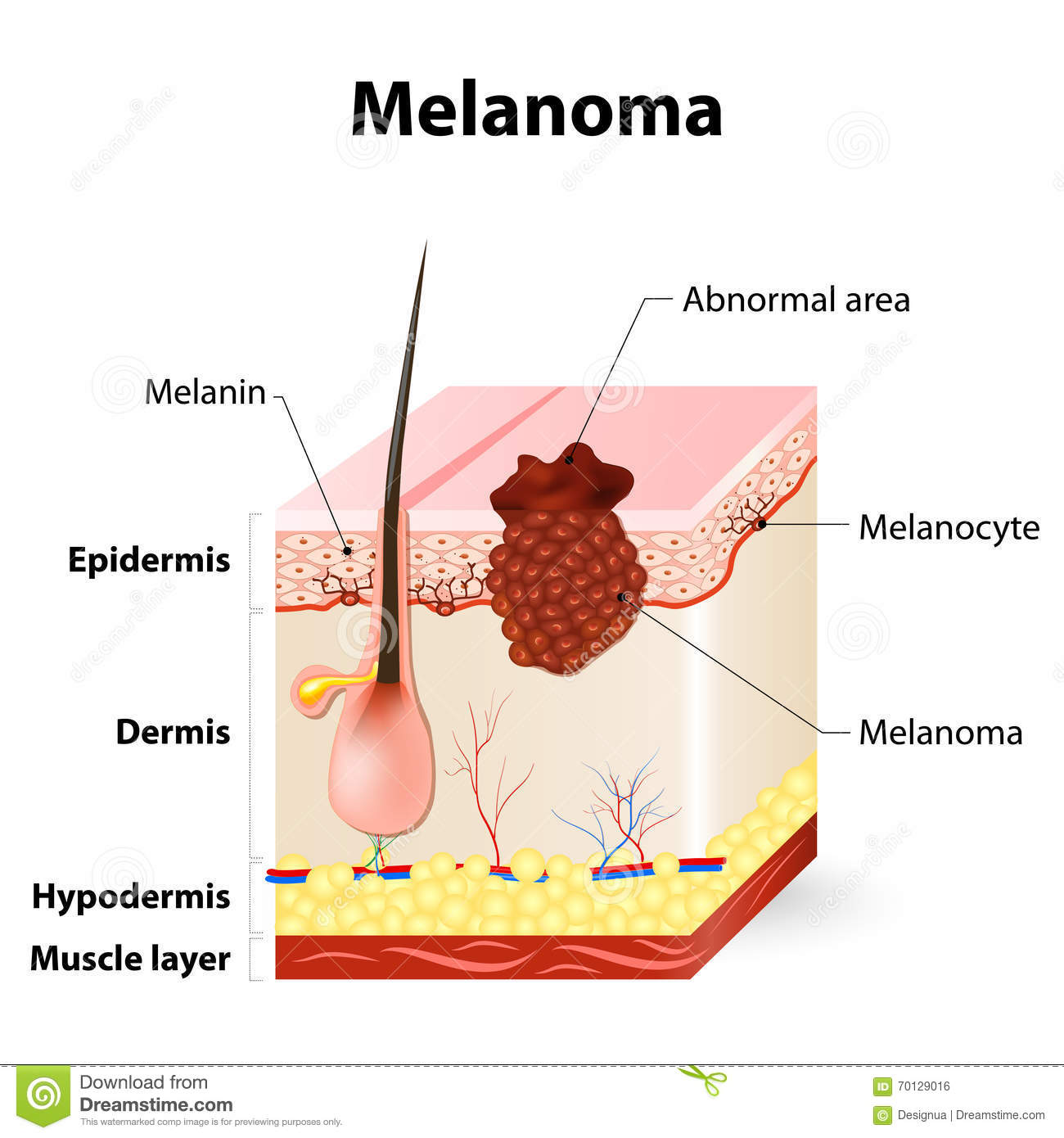 Skin Cancer Melanoma Stock Vector Illustration Of Dermis 70129016