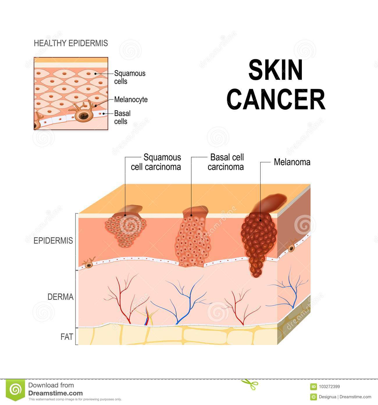 Skin Cancer Squamous Cell Carcinoma Basal Cell Cancer And Melanoma