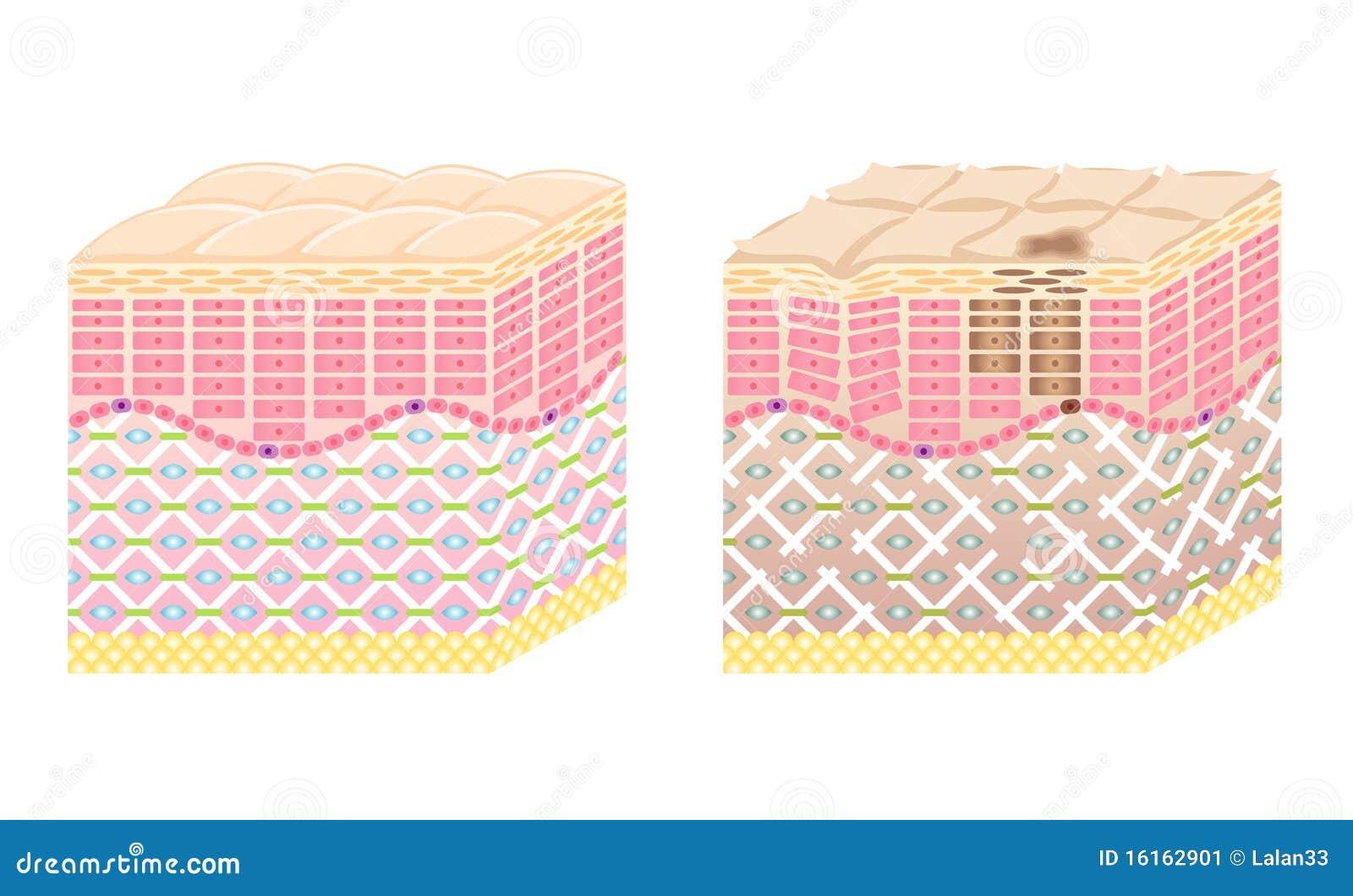 skin crosssection stock image image 16162901