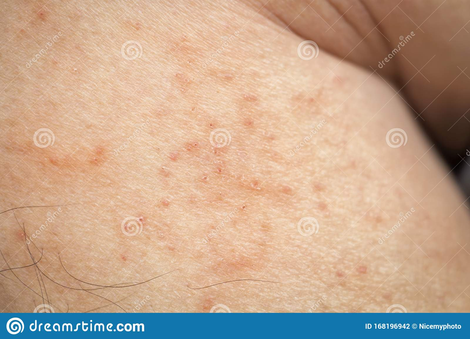 Skin Disease Winter Healthcare Dry Cracking Skin And Rash Red Of Leg On During Weather Cold Dermatologist And Treatment Stock Photo Image Of Itchy Atopic 168196942