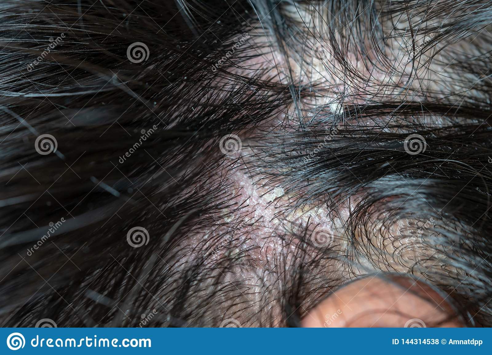 Skin Diseases, On The Scalp Stock Photo - Image of dirty