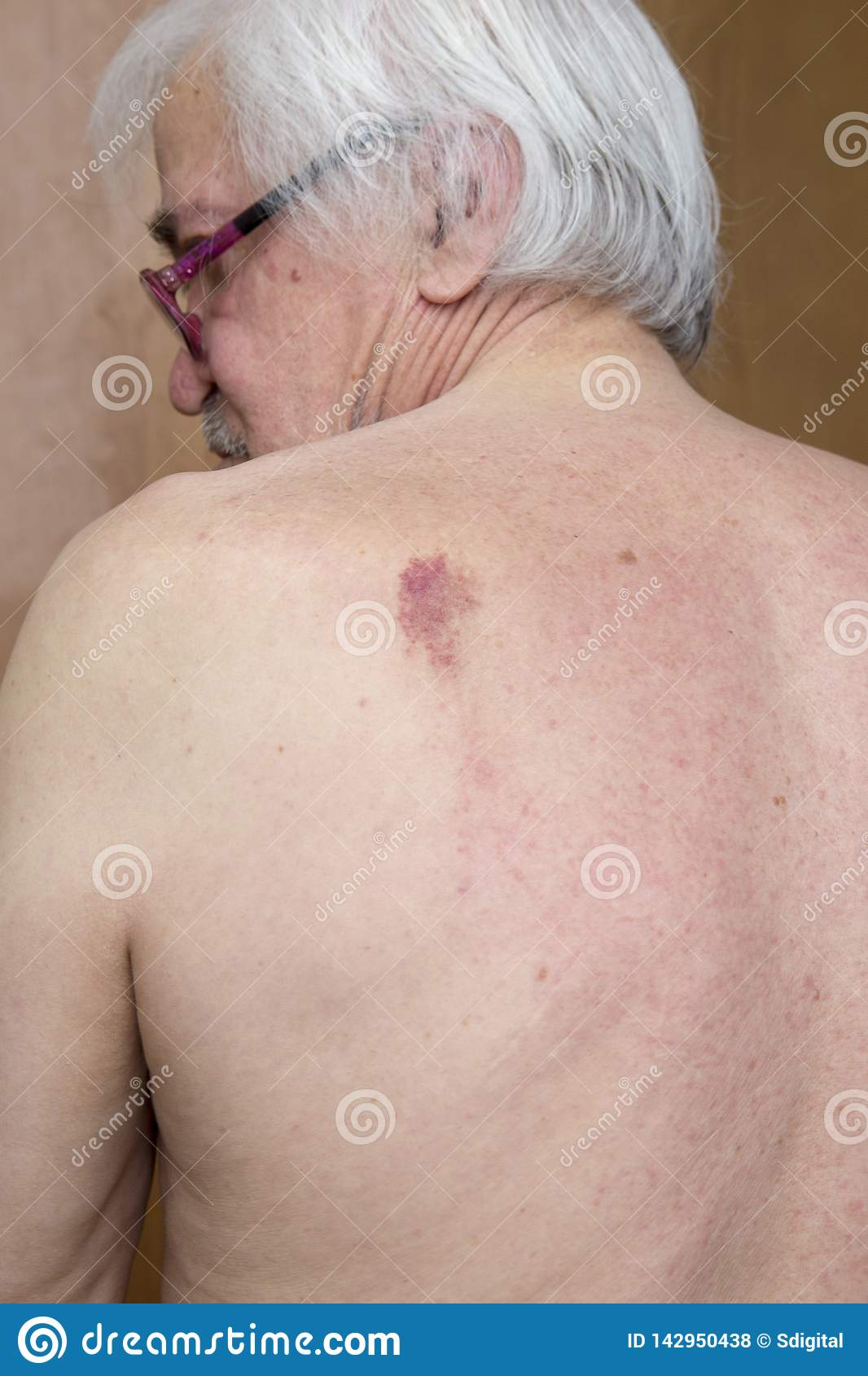 Skin Nevus Of The Back Stock Photo Image Of Hand Health 142950438