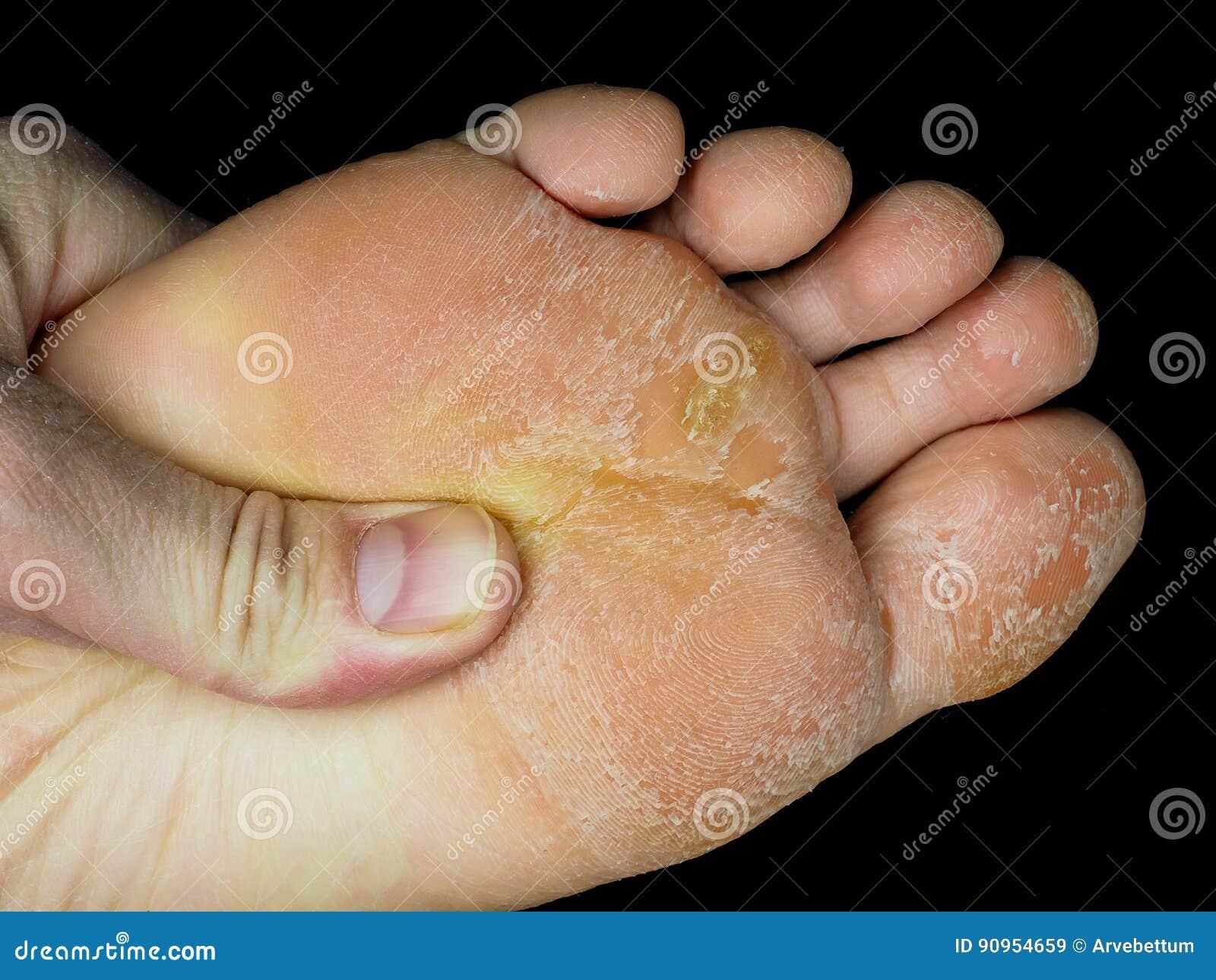 black skin on foot