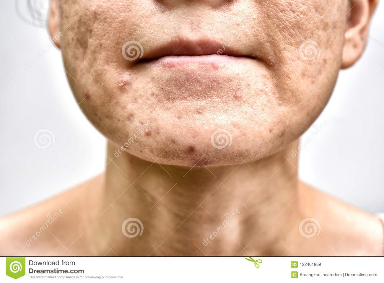 Skin problem with acne diseases, Close up woman face with whitehead pimples on chin, Menstruation breakout.