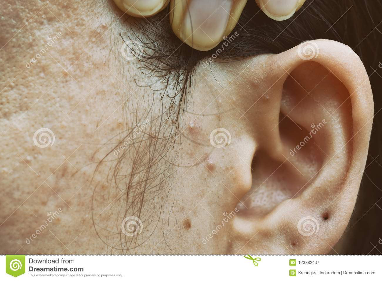 Skin problem with acne diseases, Close up woman face with whitehead pimples, Menstruation breakout.
