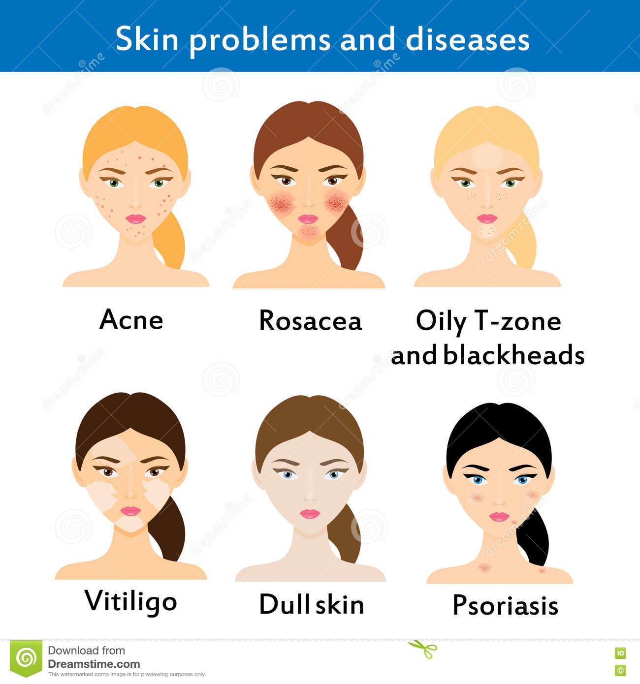 Skin problems and diseases