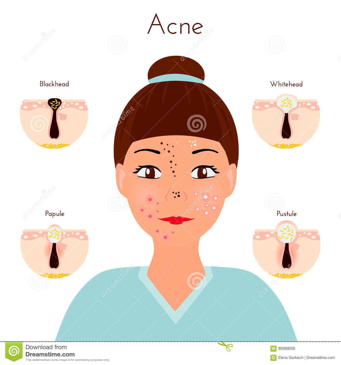Types of acne pimples stock vector illustration of disorder girl closse up face with different types of acne pimples facial treatments pooptronica