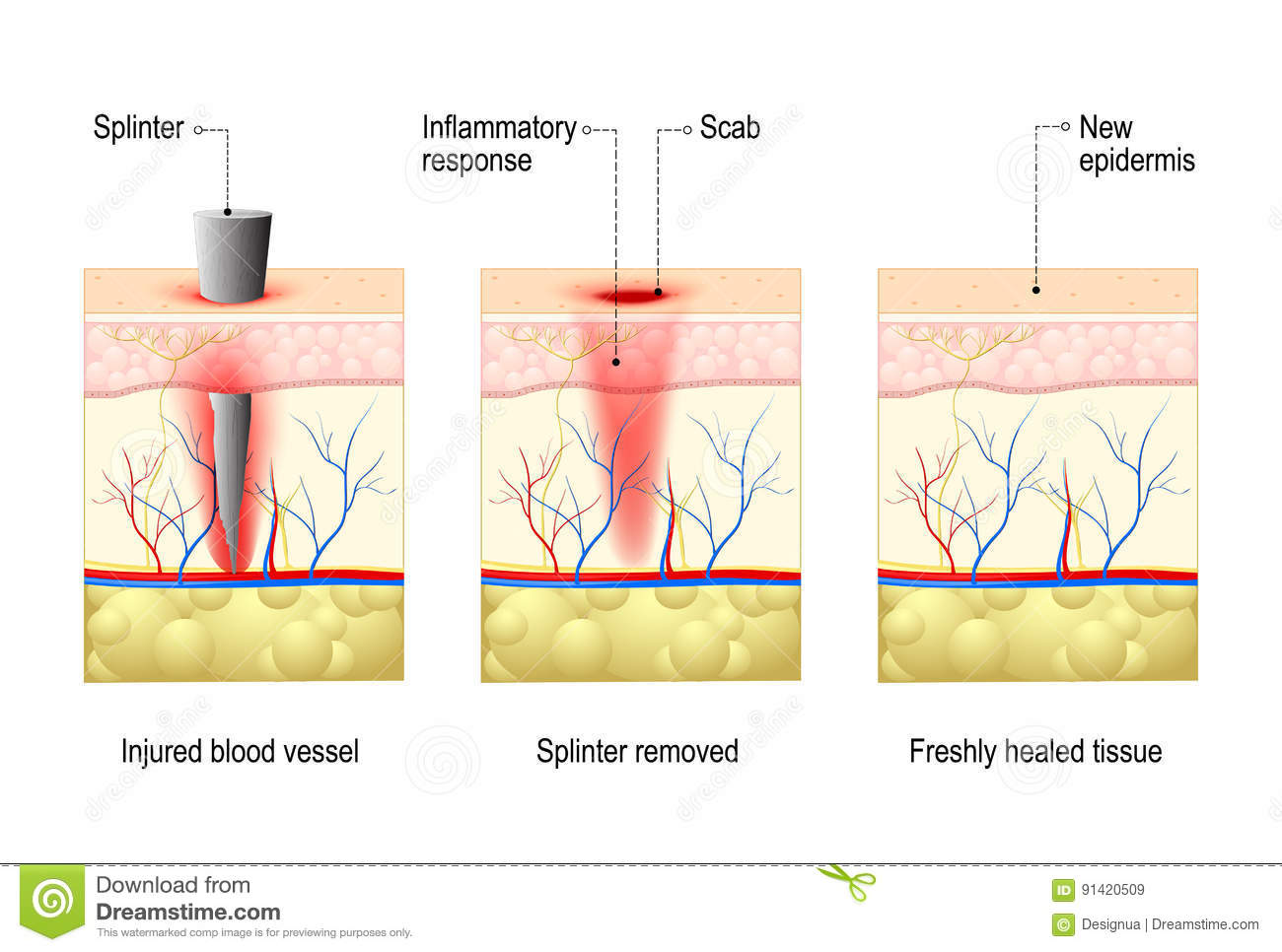 Human Skin Wound Diagram - Introduction To Electrical Wiring Diagrams •