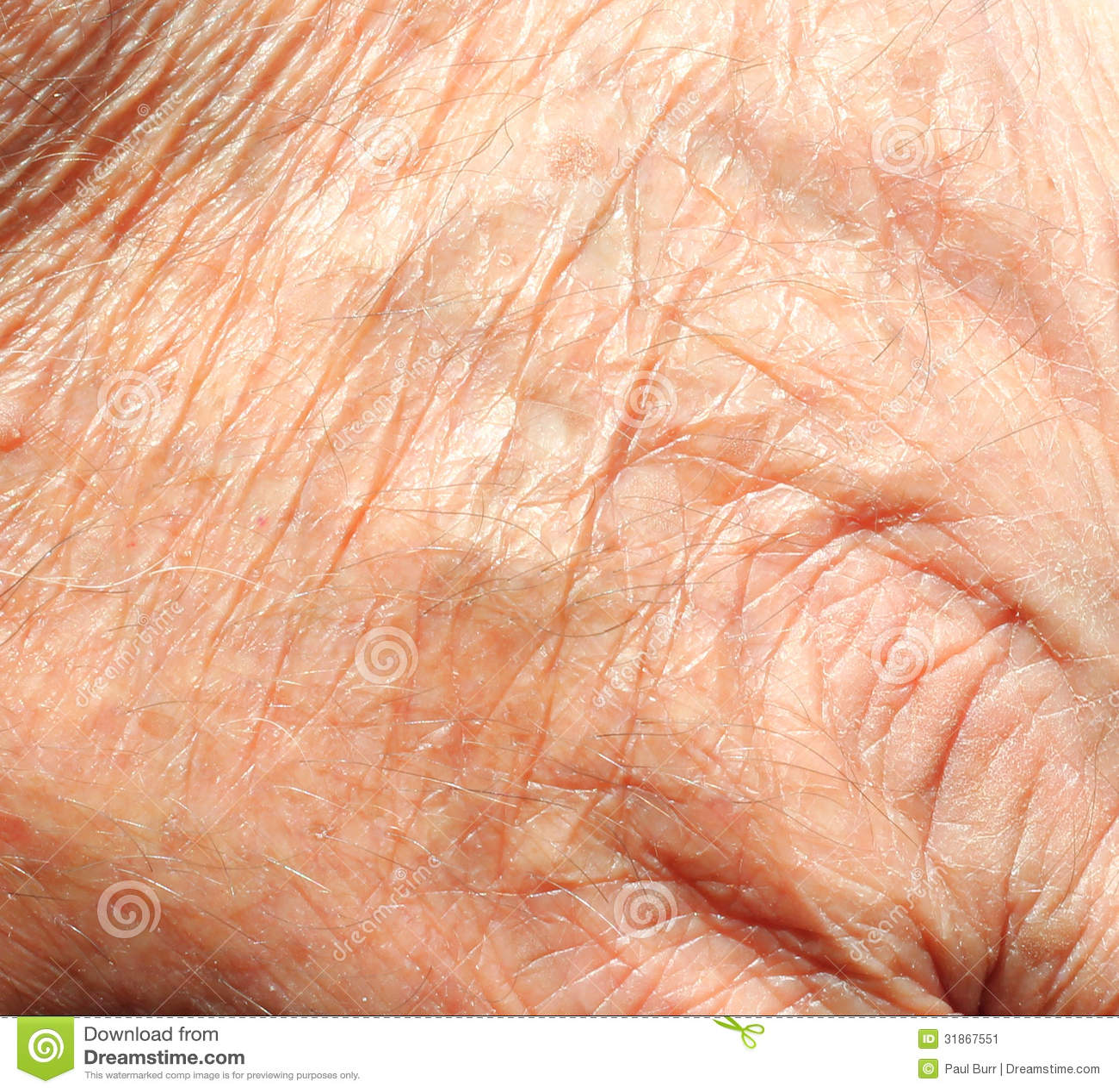 Skin Texture  Old Skin...