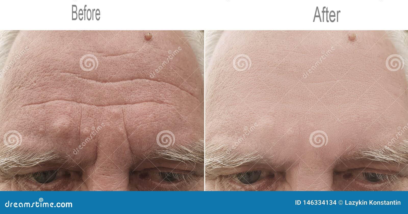 Skrynkla hud, panna, öga som är gammalt, ögonbryn