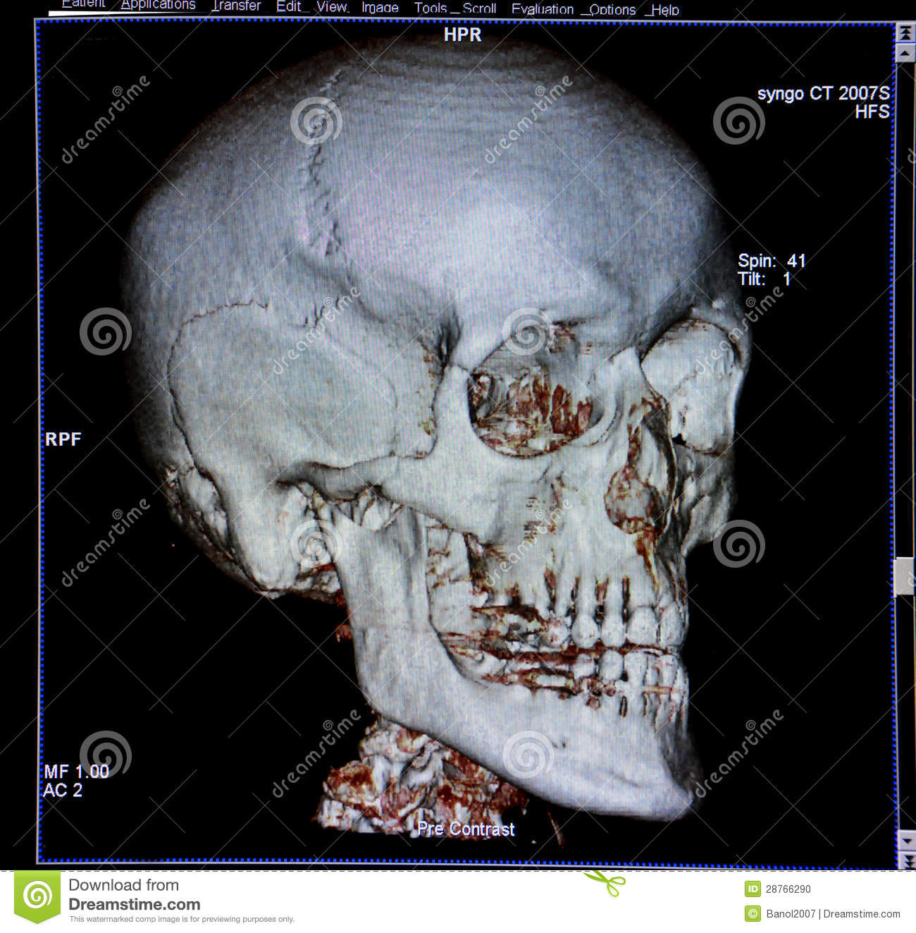 Skull Ct Scan Reconstruction Anatomy Stock Photo Image Of