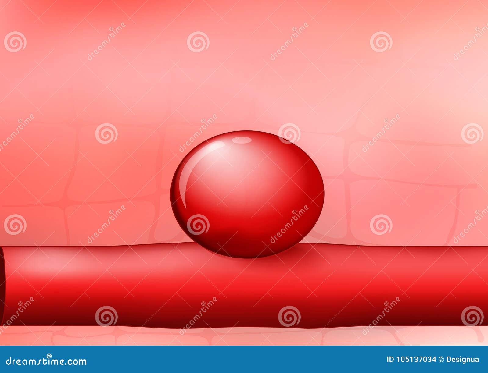 Slagader met een aneurisma op rode achtergrond