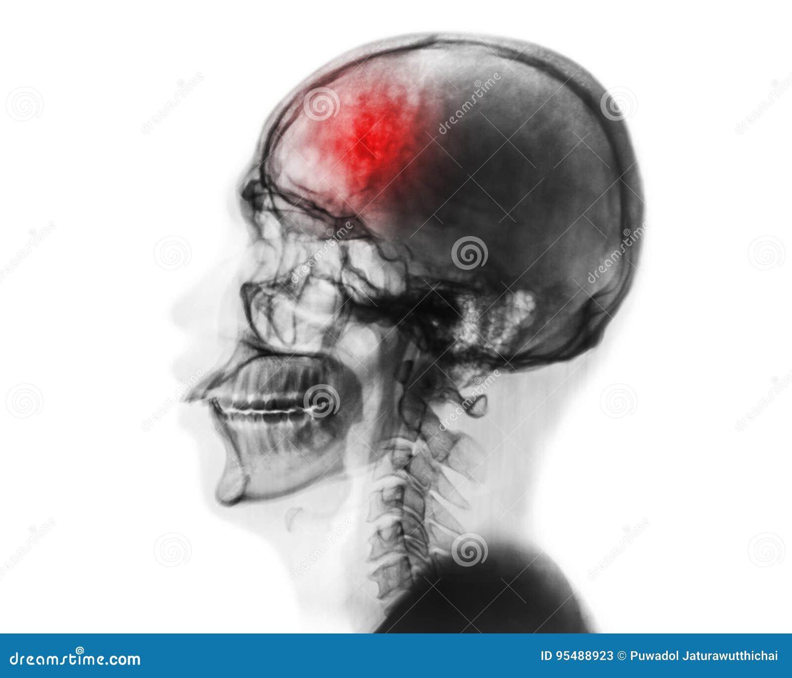 Slaglängd cerebrovascular olycka Filma röntgenstrålen av den mänskliga skallen och den cervikala ryggen