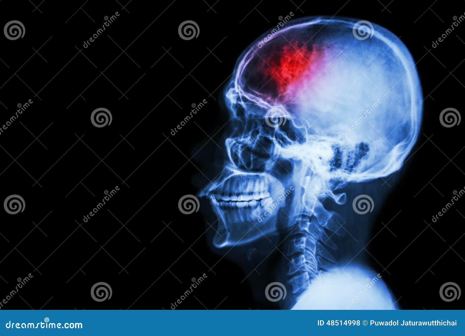 Slaglängd (cerebrovascular olycka) Filma röntgenstråleskallelateralen med slaglängden och förbigå område på vänstra sidan