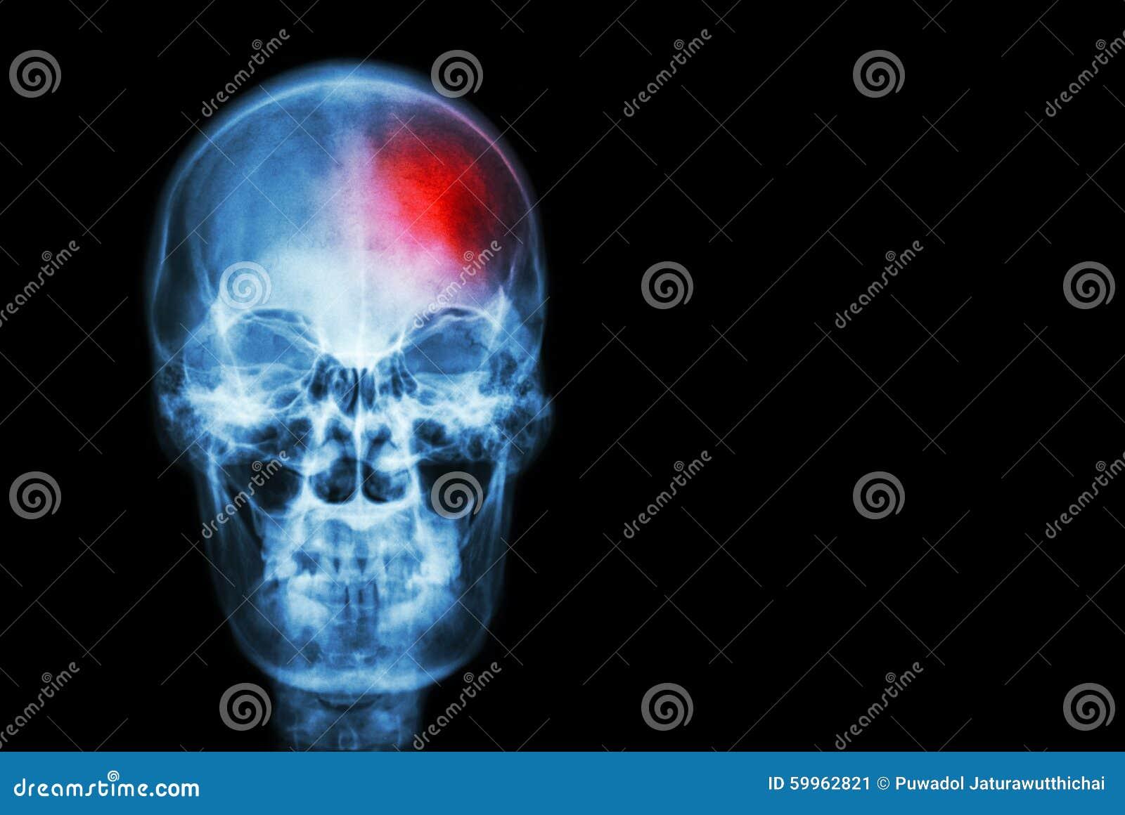 Slaglängd (Cerebrovascular olycka) filma röntgenstråleskallen av människan med rött område (läkarundersökning, vetenskap och sjuk
