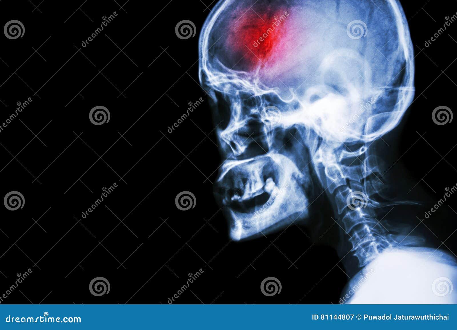 Slaglängd filma sidosikten för röntgenstråleskallen och för den cervikala ryggen och slå cerebrovascular olycka tomt område på vä