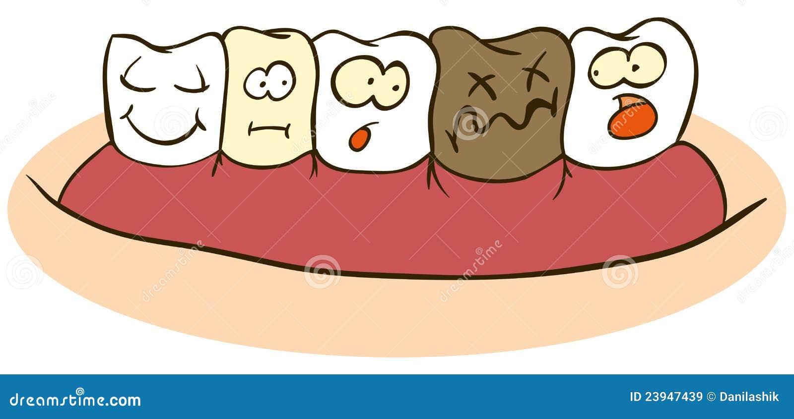 Slechte tanden