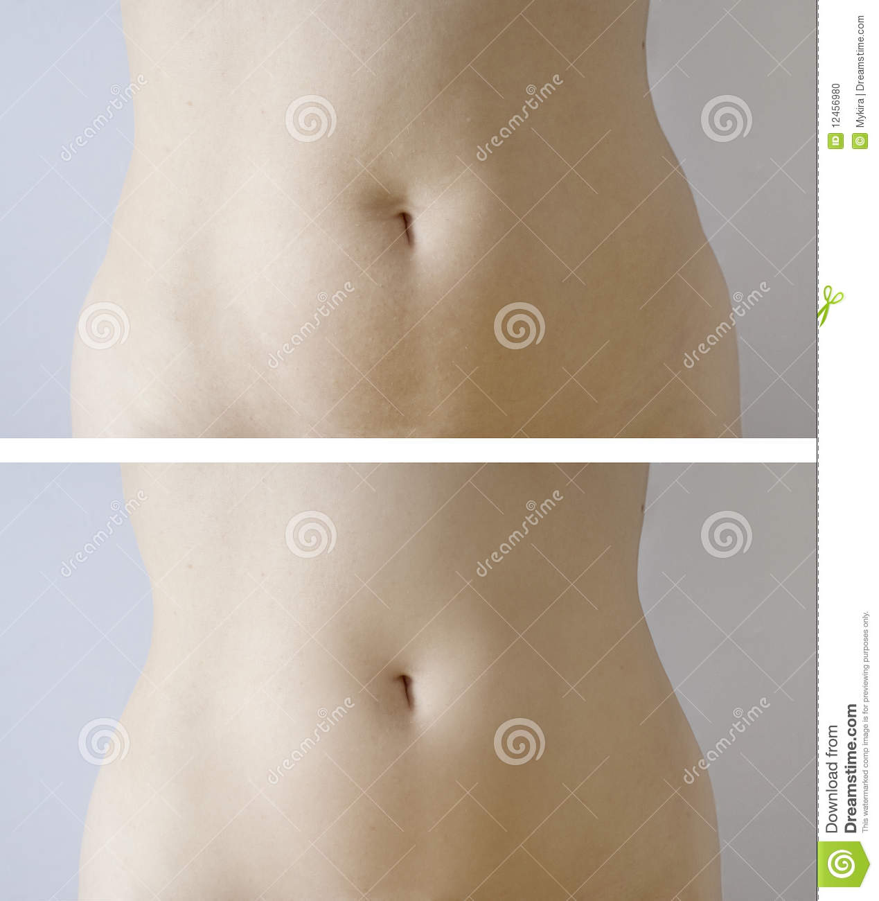 Slimming : before-after