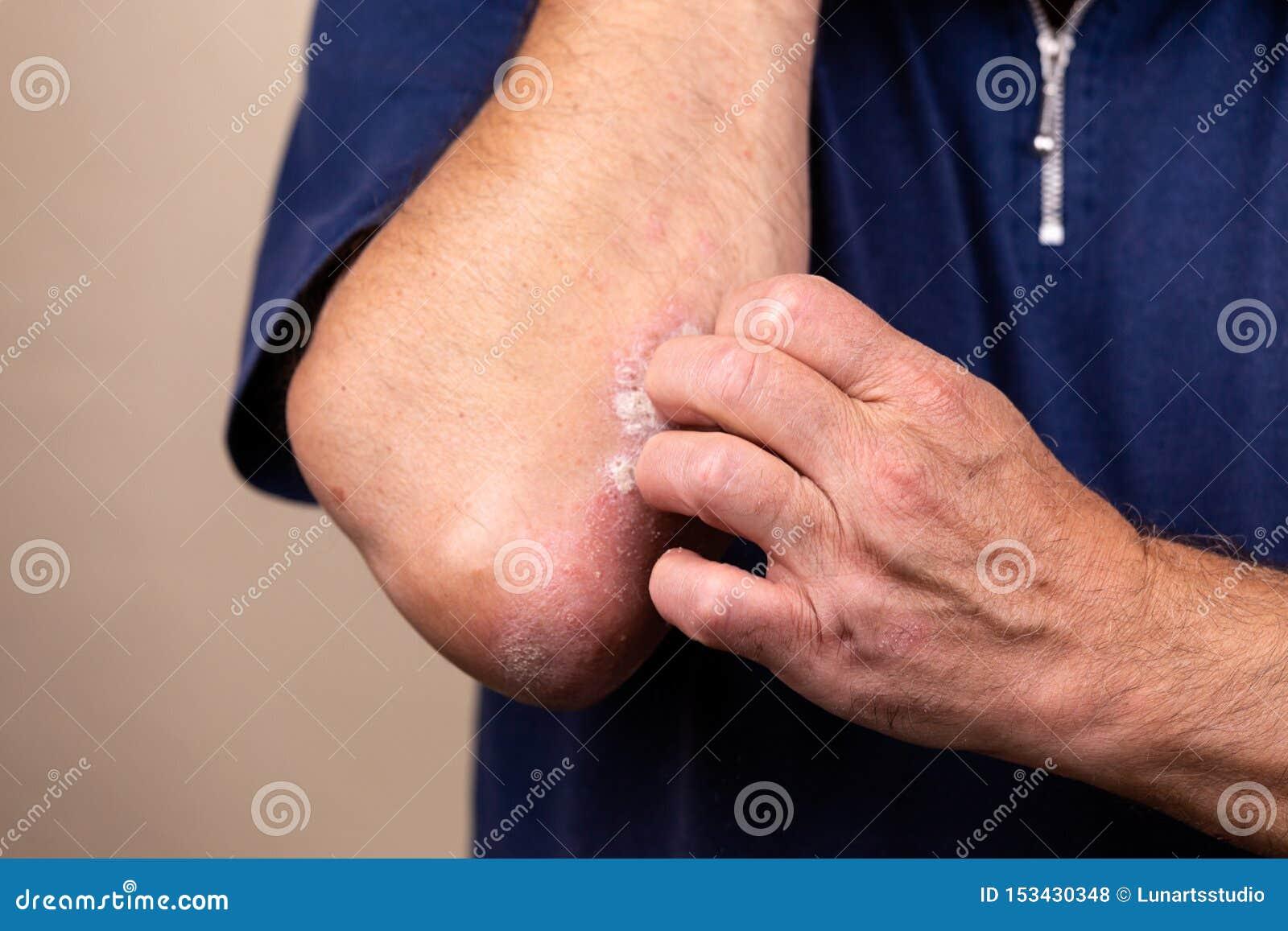 Sluit omhoog dermatitis op huid, ziek allergisch onbesuisd dermatitiseczema van patiënt, atopic textuur van het de huiddetail van