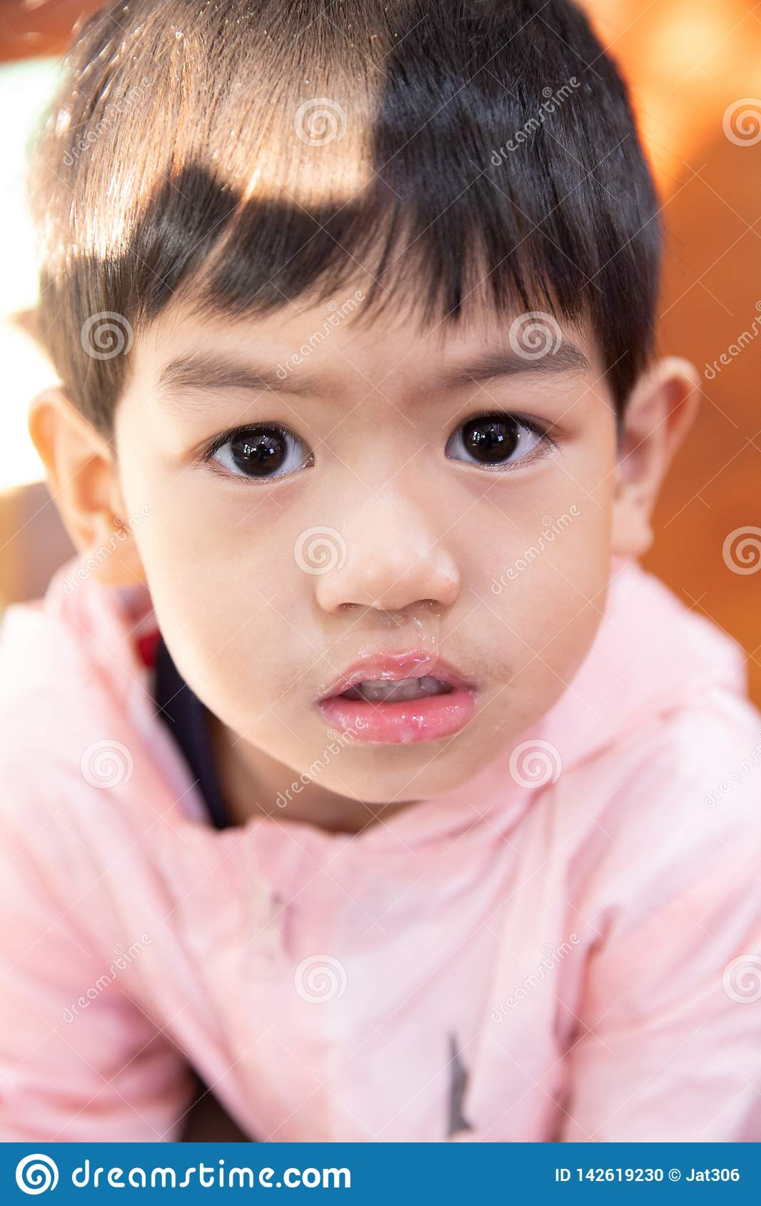 Sluit omhoog slijm die van neus stromen, heeft de Aziatische jongen een lopende neus met duidelijk snot