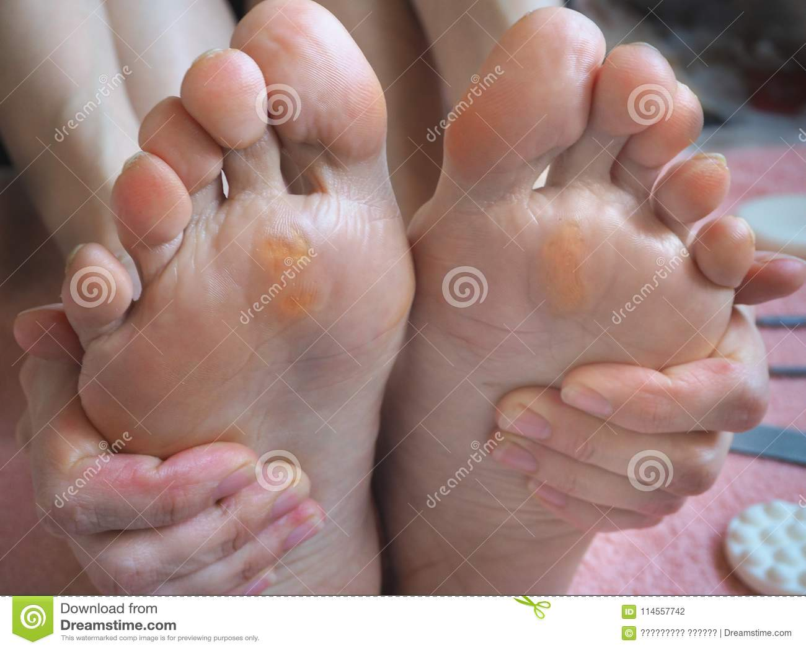 Slut upp av valkar Smärtsam havre på fötter