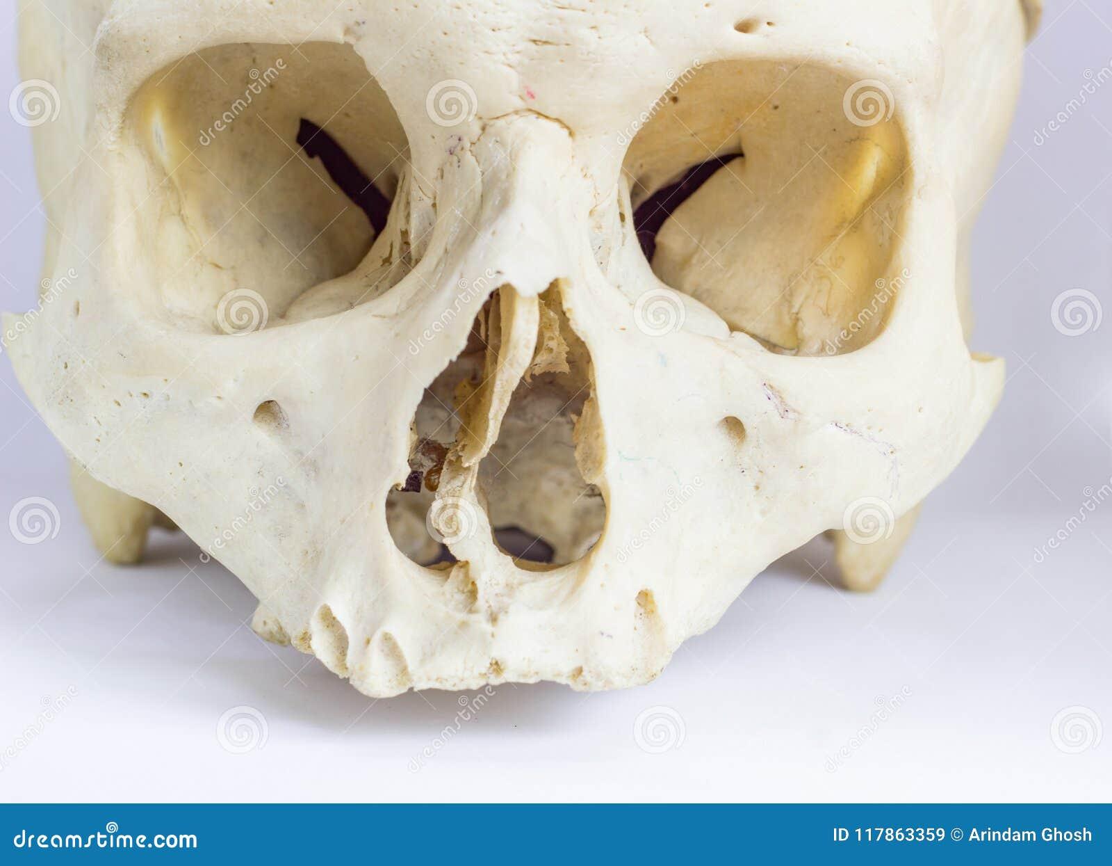 Slut upp makrosikt av det mänskliga skallebenet som visar anatomin av den nasala foramenen, den nasala septumen och orbitalhålet