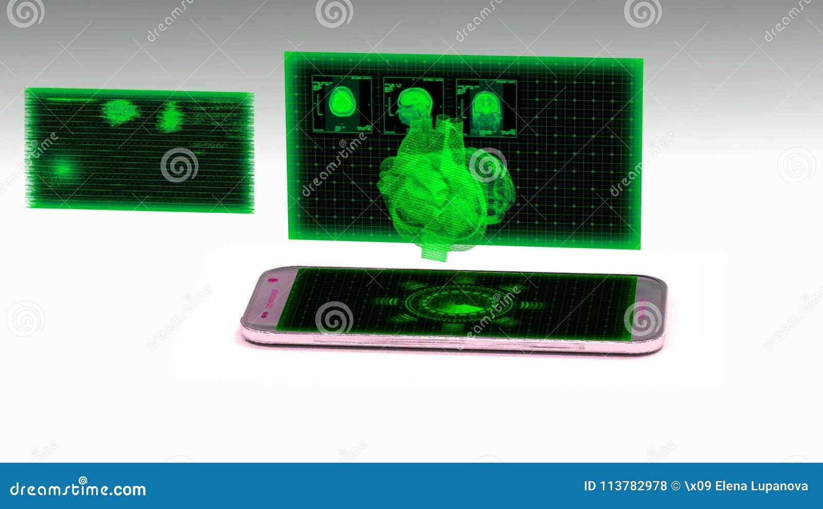 Smartphone Projektiert Ein Hologramm Des Menschlichen Herzens, Das ...