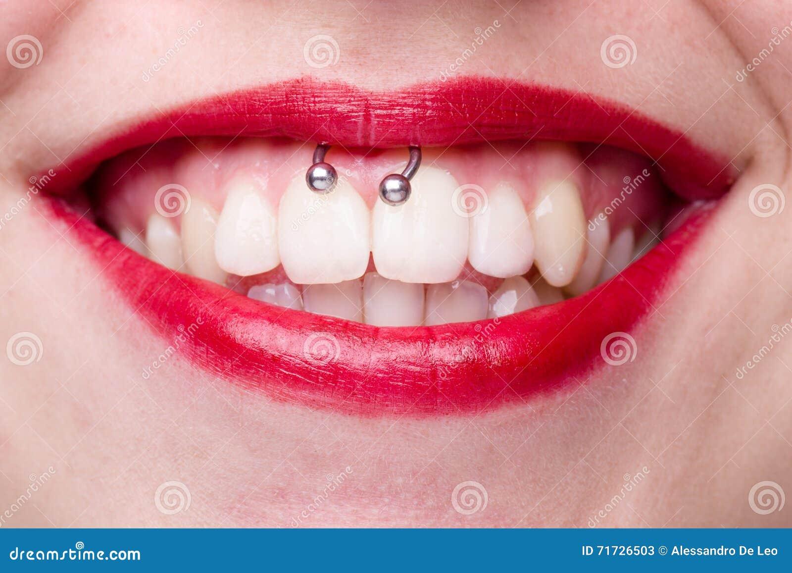 piercing i munnen