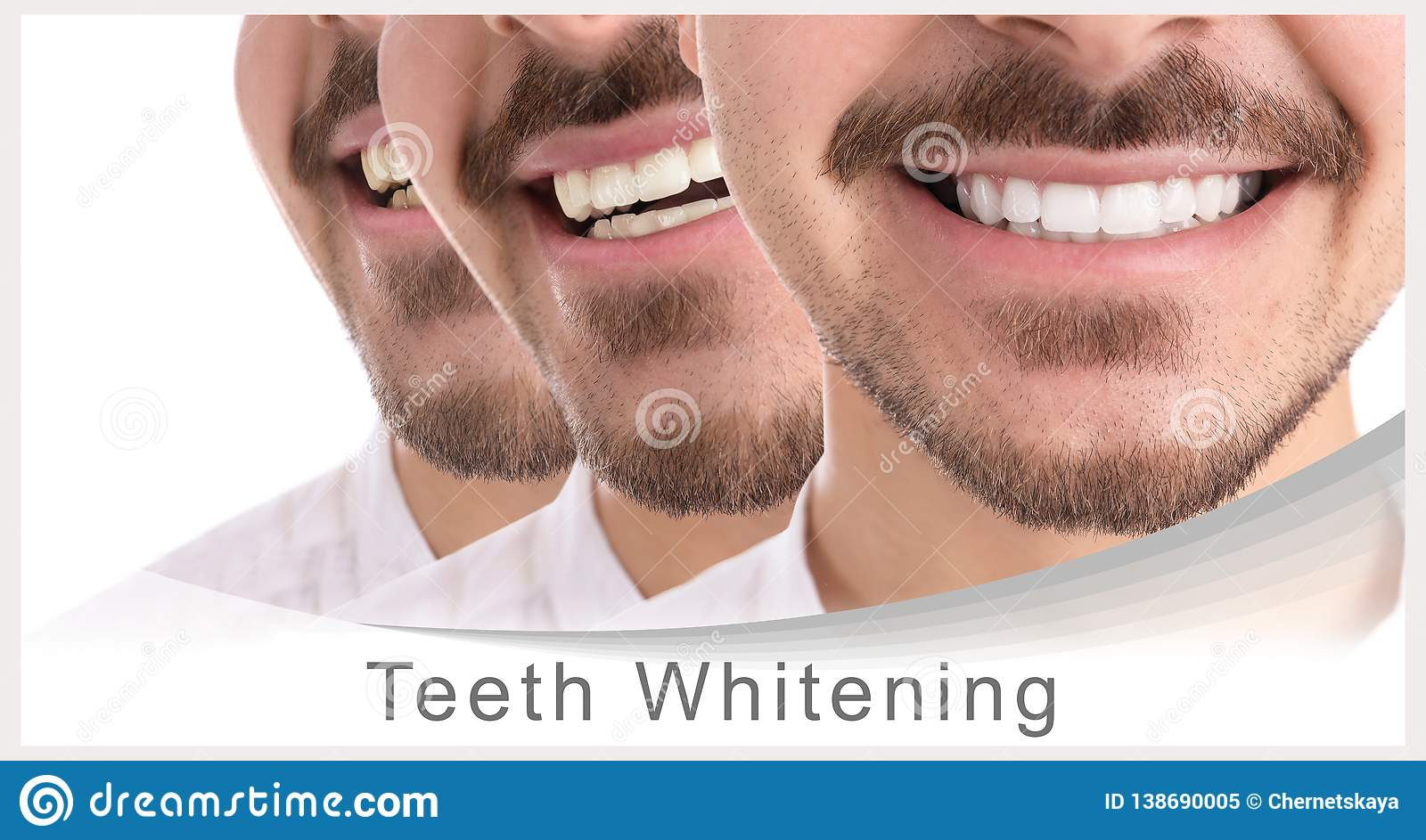 Smiling Man Before And After Teeth Whitening Procedure Stock