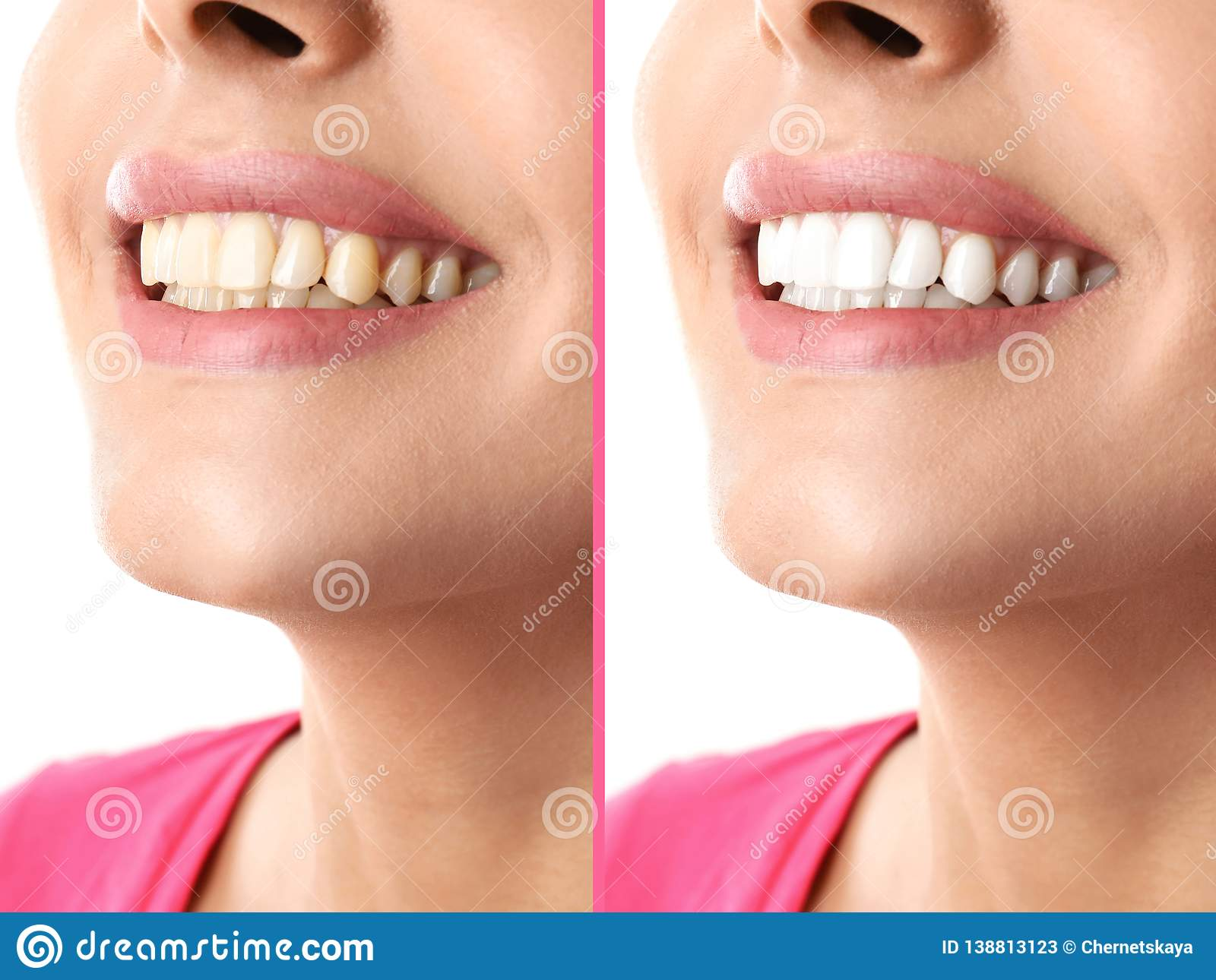 Smiling Woman Before And After Teeth Whitening Procedure