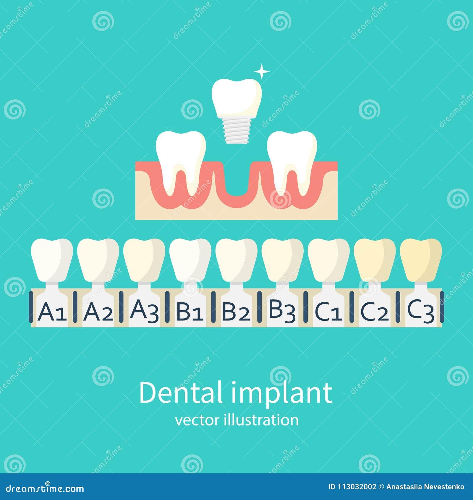 Sombras del vector de los implantes
