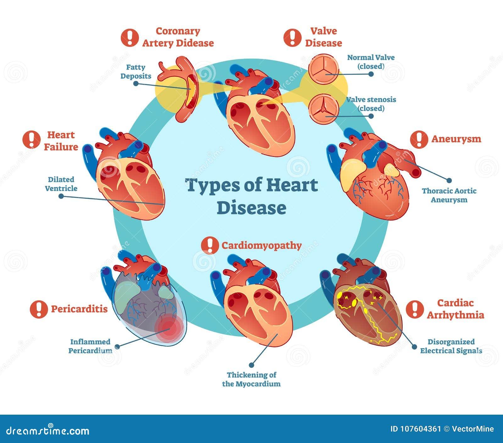 Soorten hartkwaalinzameling, vectorillustratiediagram Onderwijs medische informatie
