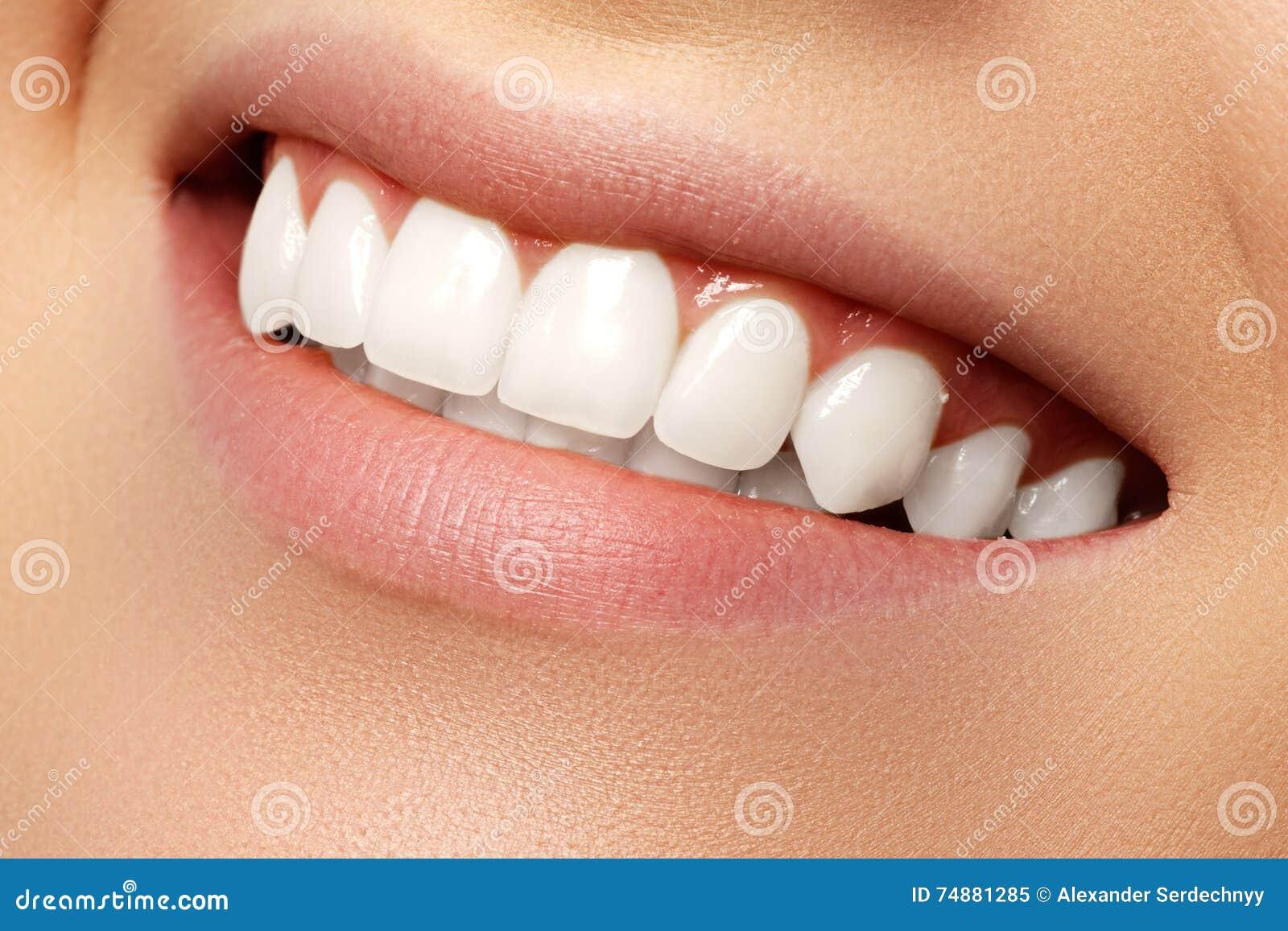 Sorriso bonito com dentes do alvejante Foto dental Closeu macro