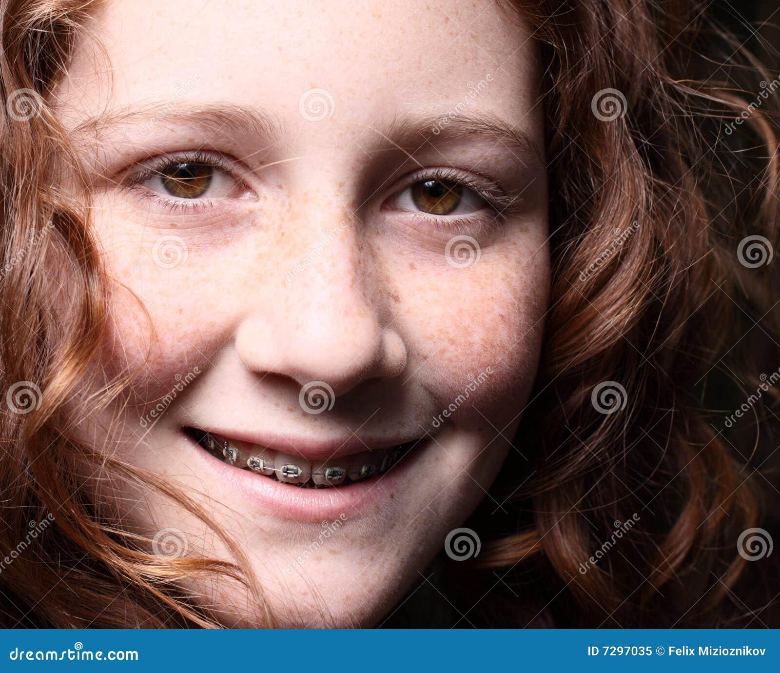 Sorriso de Headshot