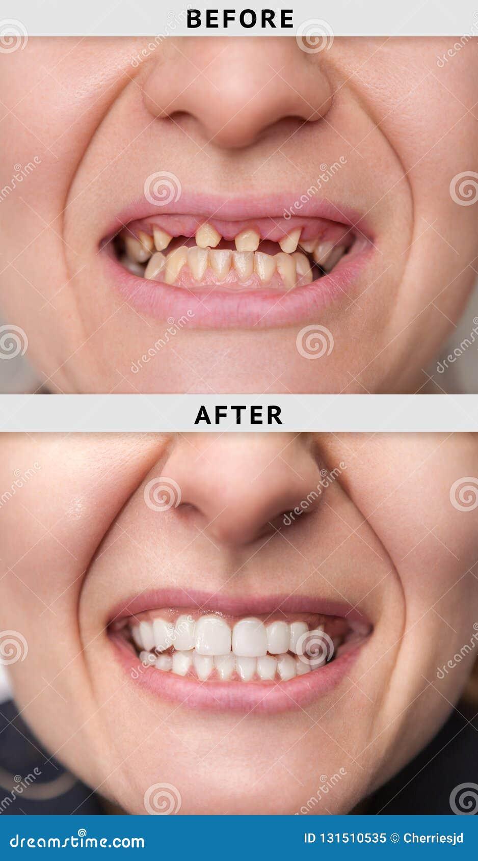 Sorriso fêmea após e antes de dental