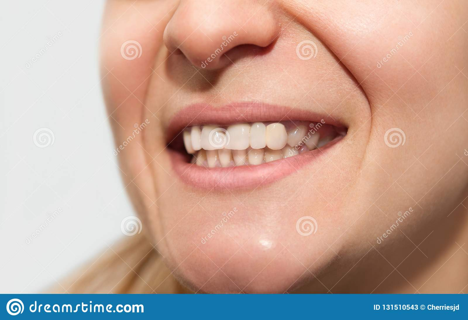 Sorriso fêmea com cor lisa da coroa de má qualidade do dente, forma má