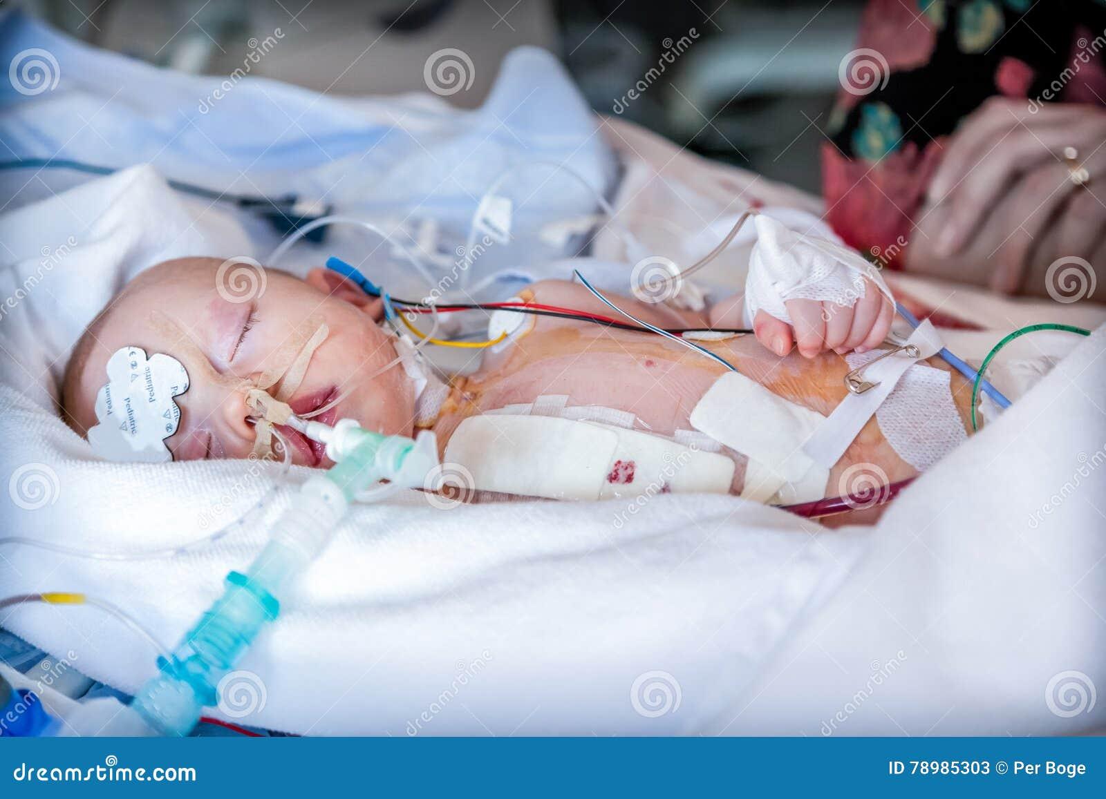 Download Spädbarn Barn I Intensivvårdenhet Efter Hjärtkirurgi Fotografering för Bildbyråer - Bild av enhet, dressing: 78985303