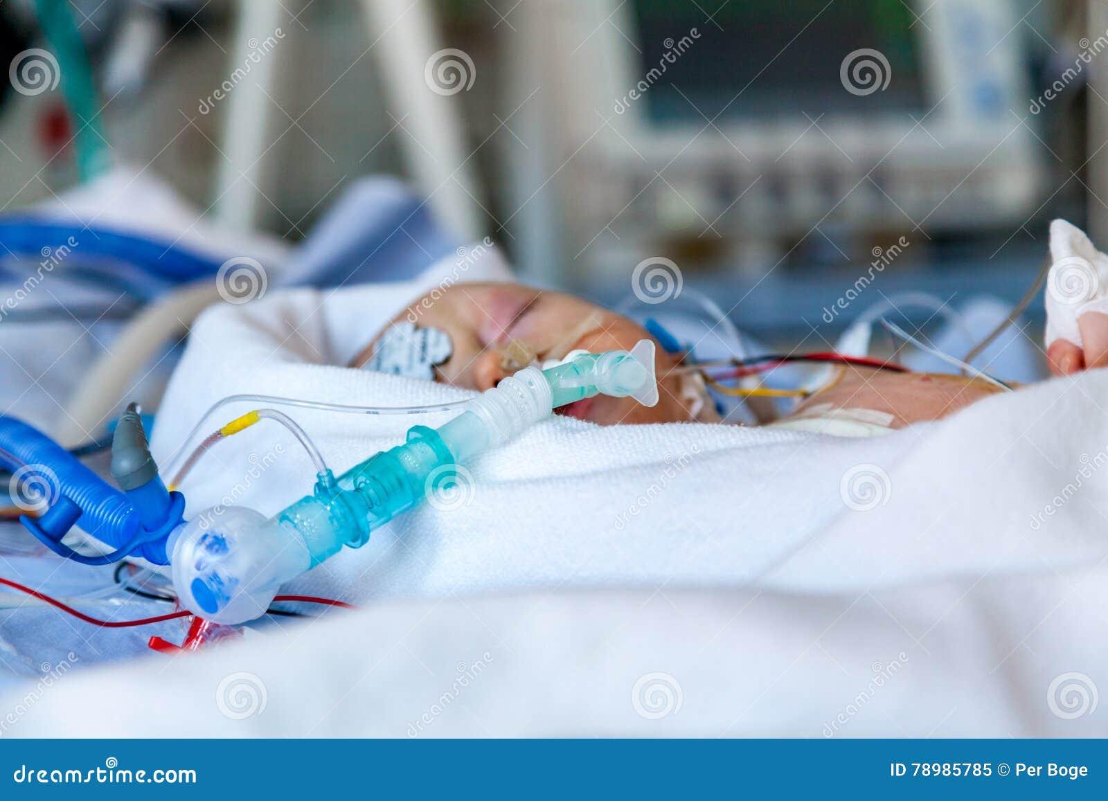 Spädbarn barn i intensivvårdenhet efter hjärtkirurgi