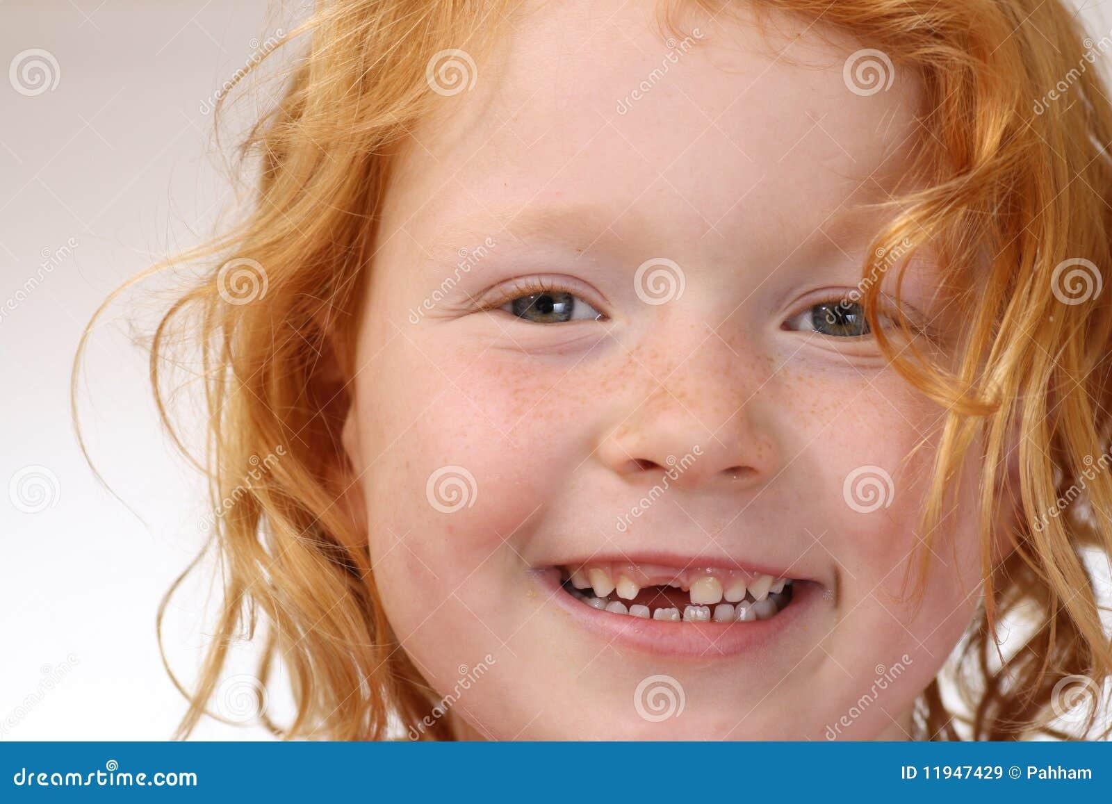 Spacco del dente