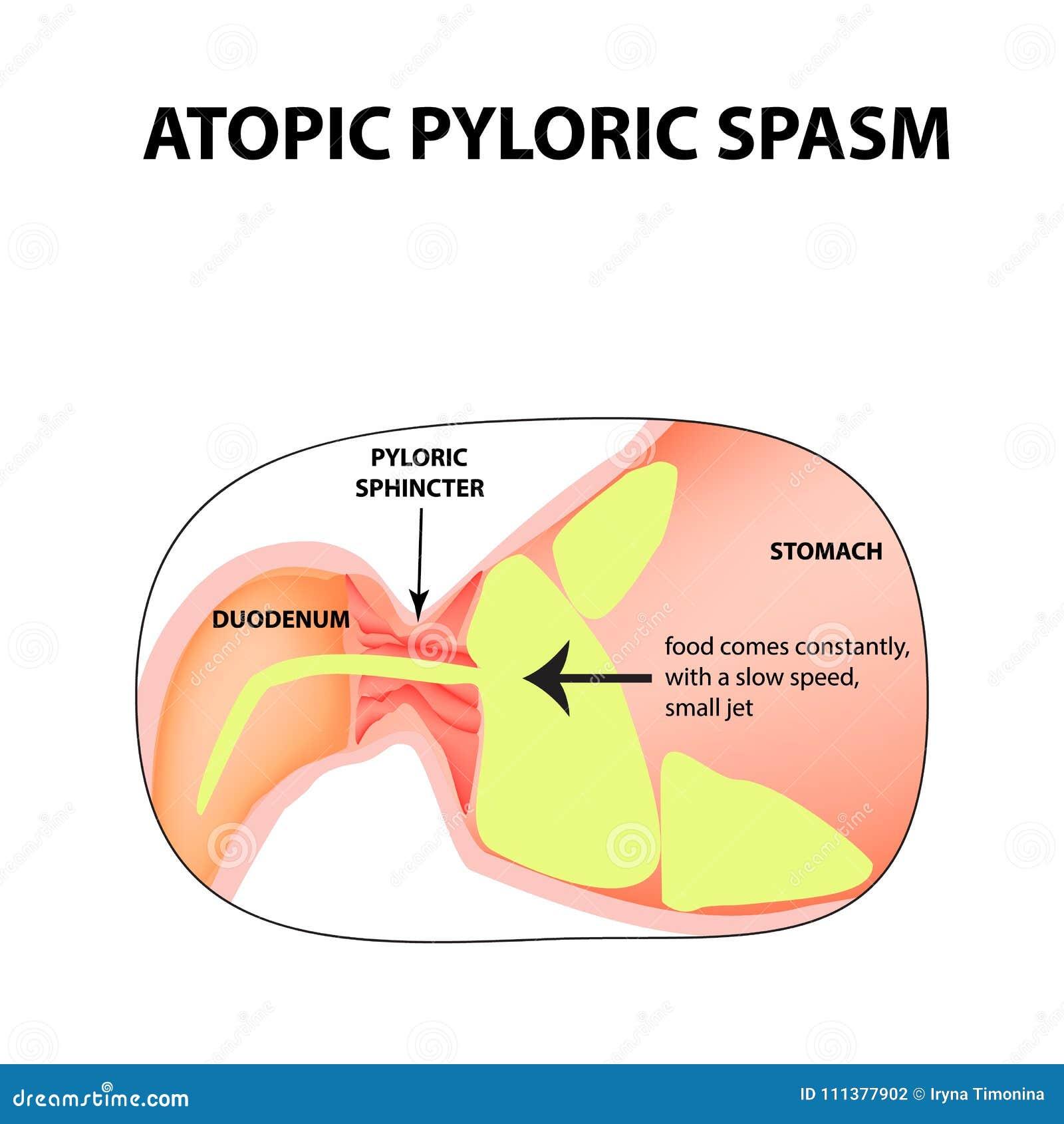 Spasms Of The Pylorus  Pylorospasm  Atonic  Pyloric
