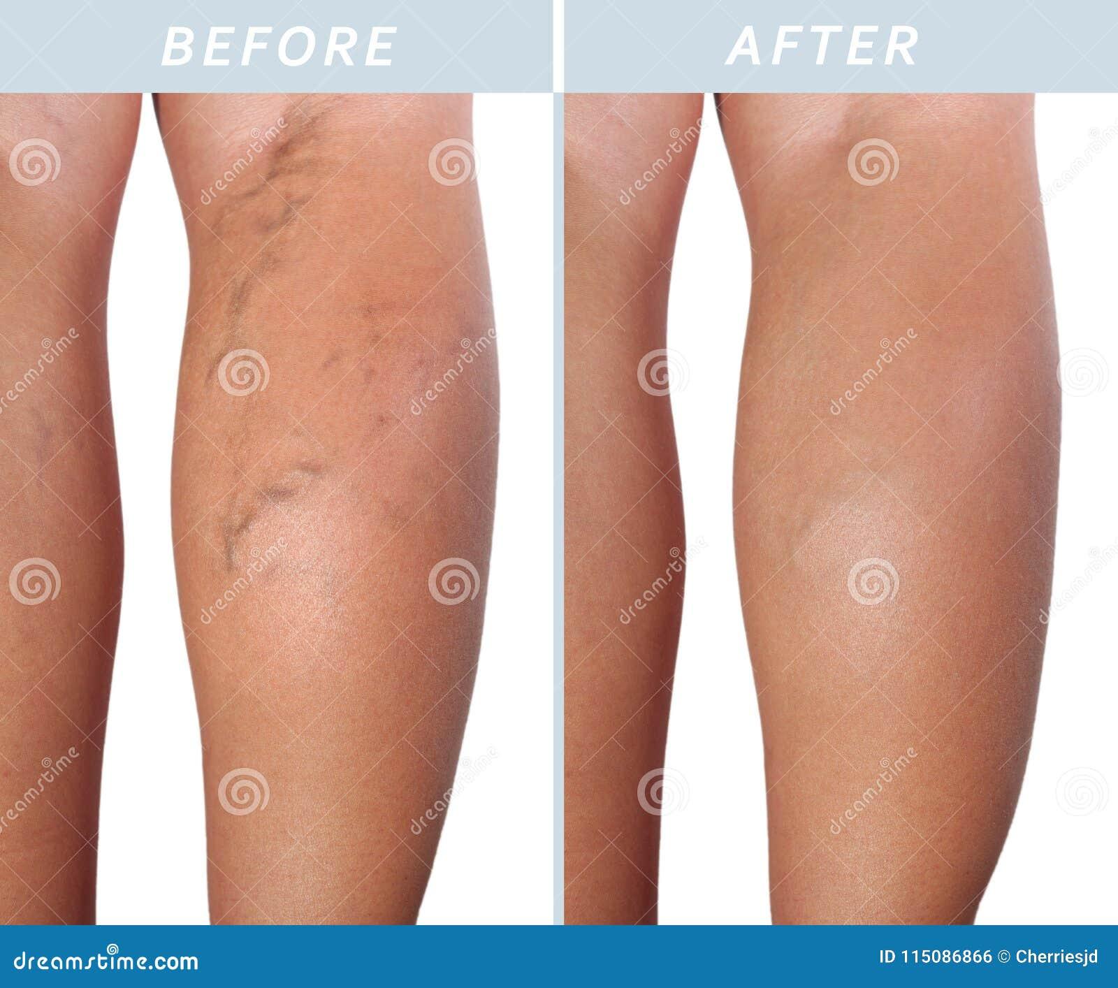 behandeling spataders benen