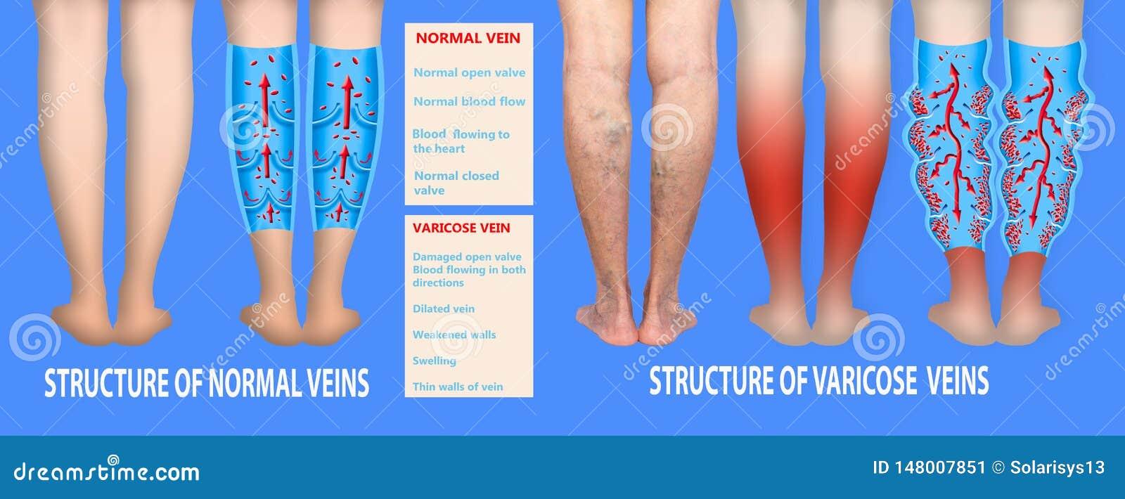 Spataders op vrouwelijke hogere benen De structuur van normaal en spataders